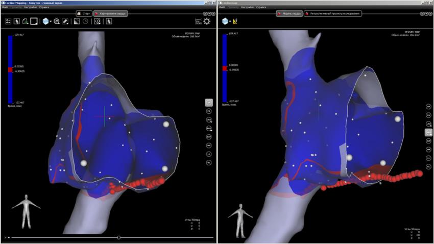 система инвазивного картирования сердца