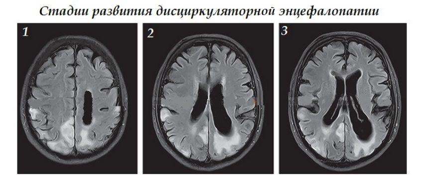 стадии развития энцефалопатии