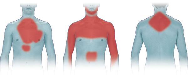 трансмуральный инфаркт миокарда зоны боли
