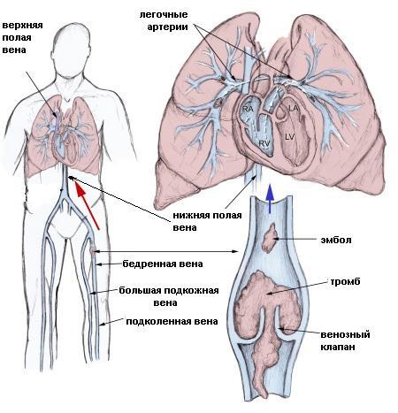 венозный тромбоз артерии легочной