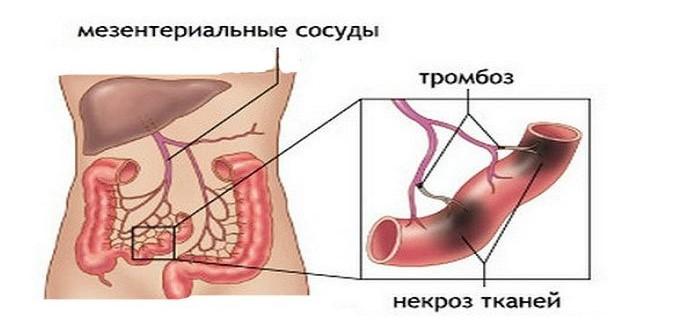 тромбоз мезентеральных артерий