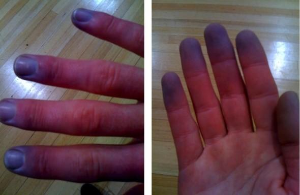 цианоз кончиков пальцев
