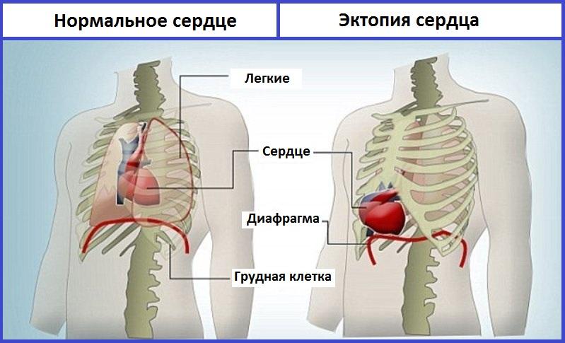эктопия сердца схема