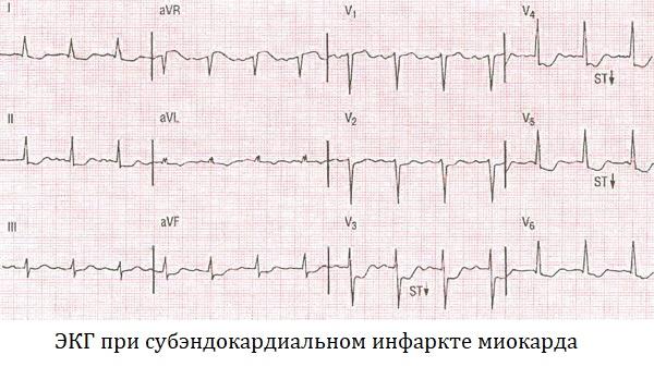 ЭКГ при субэндокардиальном инфаркте миокарда