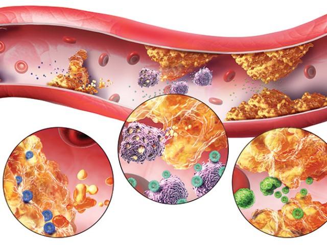 Атеросклероз и гипертония