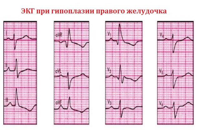 ЭКГ при гипоплазии правого желудочка