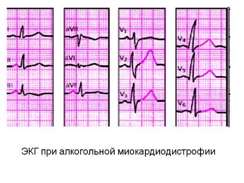 ЭКГ при миокардиодистрофии