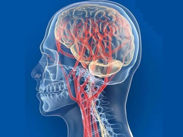 Гипоплазии артерии мозга