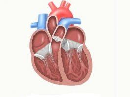 Гипоплазия отделов сердца