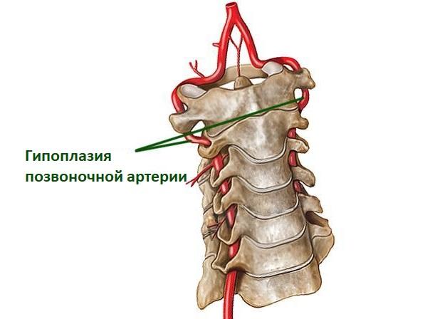 Гипоплазия позвоночной артерии
