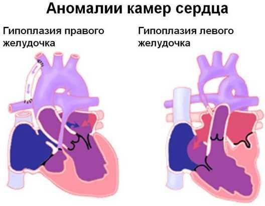 Гипоплазия левого и правого желудочка