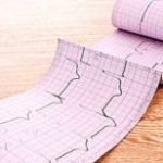Инфаркт миокарда на ЭКГ