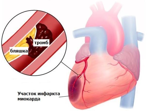 Участок инфаркта миокарда
