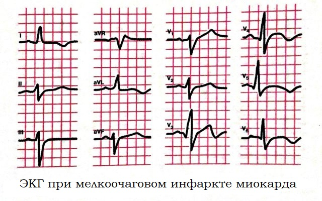 ЭКГ при мелкоочаговом инфаркте миокарда