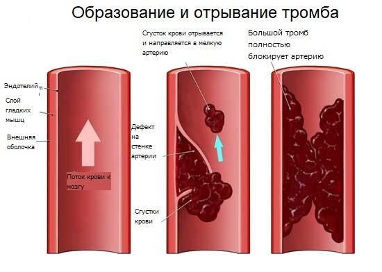 Отрывание тромба