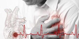 Субэндокардиальный инфаркт миокарда