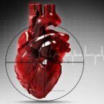 Заднебазальный инфаркт миокарда