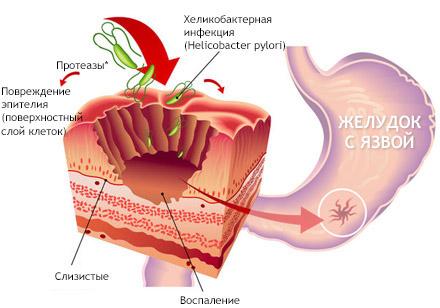 Как образуется язва