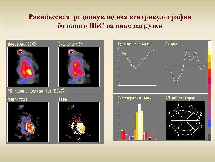 Равновесная радионуклидная вентрикулография
