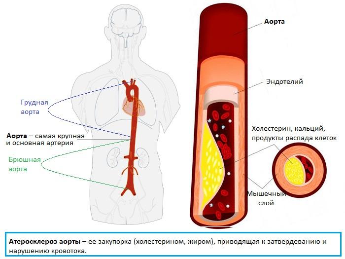 атеросклероз аорты и ее закупорка