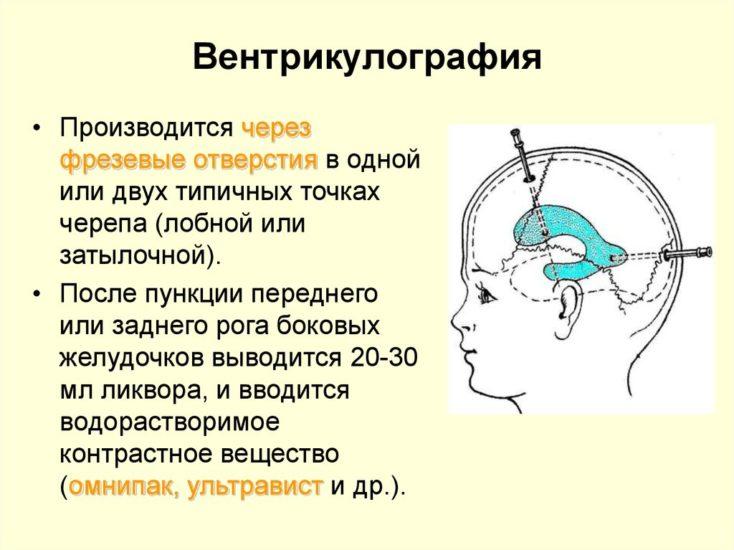 вентрикулография головного мозга