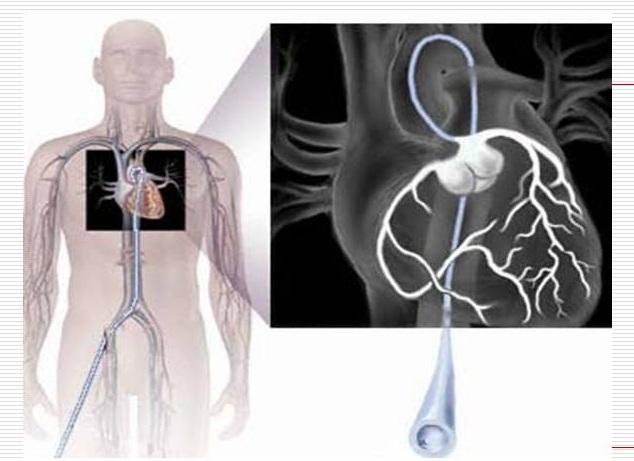 вентрикулография сердца и головы