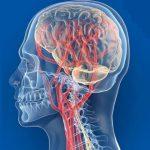 гипоплазия артерий мозга