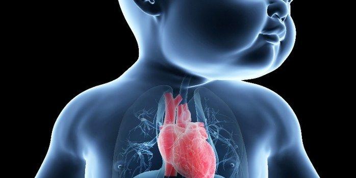 гипоплазия легочной артерии