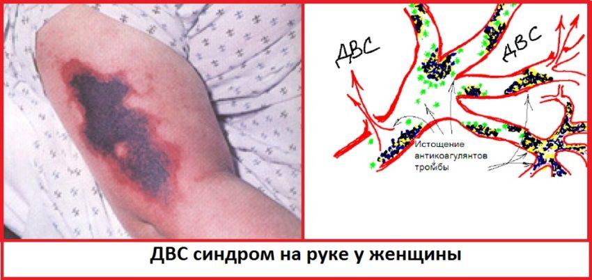 двс синдром на руке