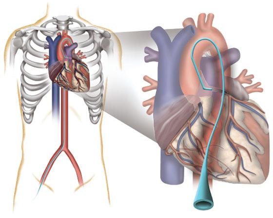 катетеризация легочной артерии-2