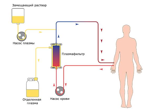 как работает плазмаферез