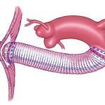 протезирование артерий
