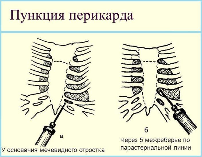 пункция перикарда ребра