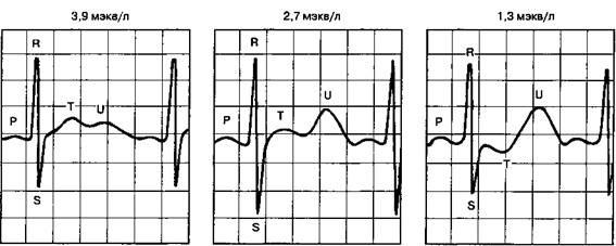 Изменения ЭКГ в зависимости от концентрации калия в крови