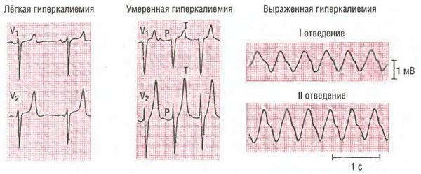 ЭКГ при повышенном калия в крови