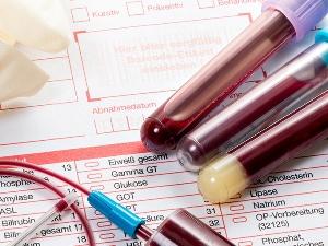 Анализ крови при гипокалиемии