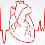 Аритмия и инфаркт