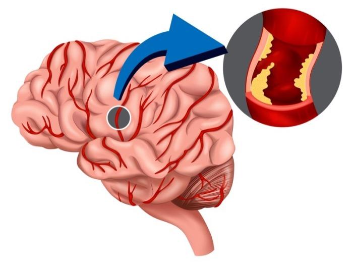 Что такое ишемическая головная боль