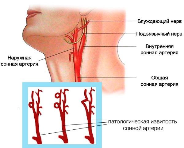 Патологическая извитость сонной артерии