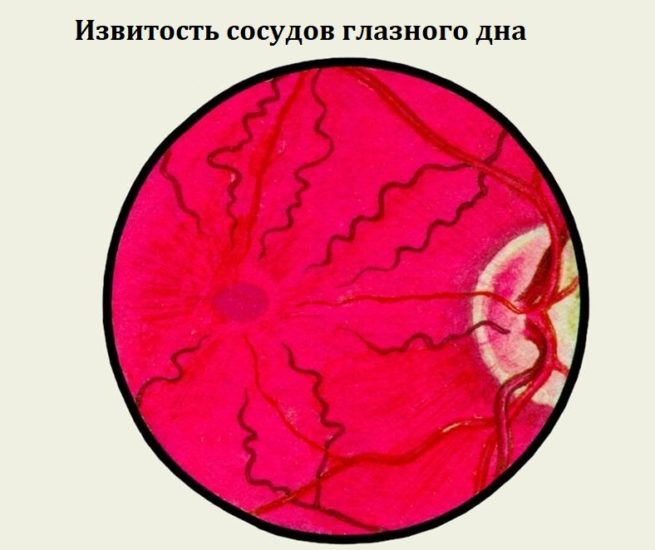 Извитость сосудов глазного дна