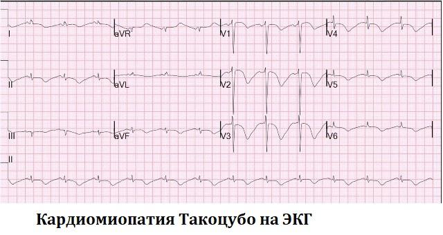 Кардиомиопатия Такоцубо на ЭКГ