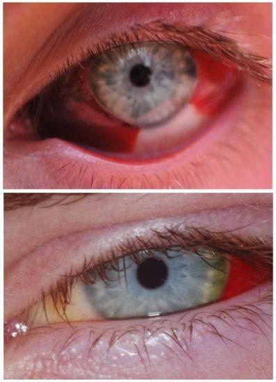 Глаз после обширного кровоизлияния