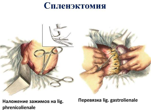 Спленэктомия при тромбоцитопенической пурпуре