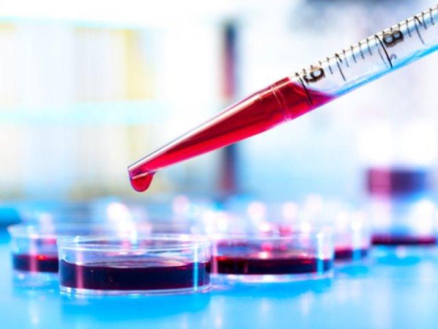 Трансаминазы крови