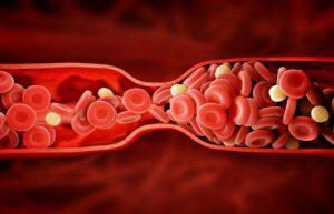 Тромболизис: препараты