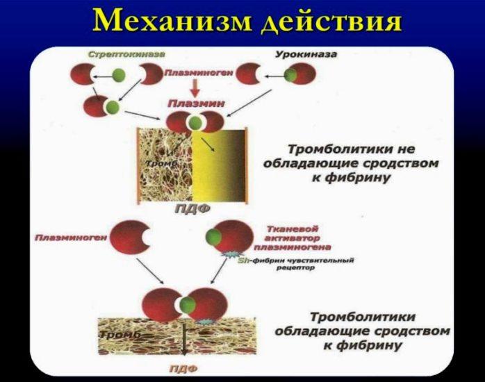 Механизм действия тромболизиса