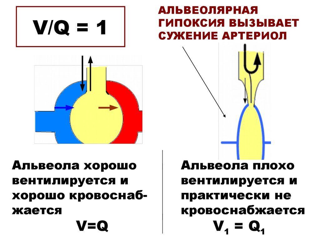 альвеолярная гипоксия