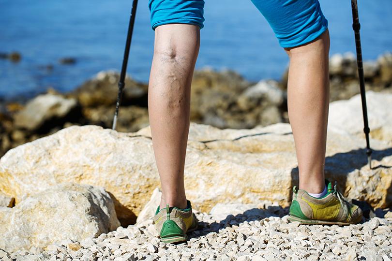 незначительное варикозное расширение вен на ногах