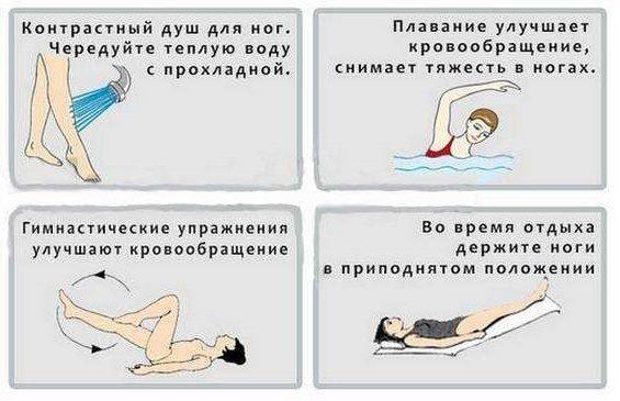 польза упражнений при варикозе