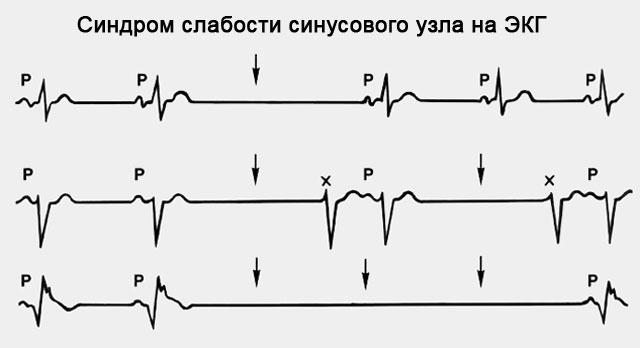 синдром сдабости синусового узла на экг